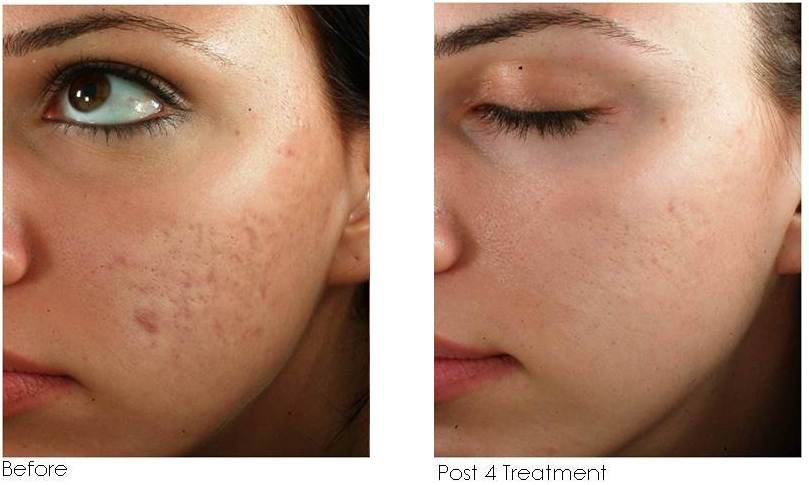 Micro-needling Naples FL