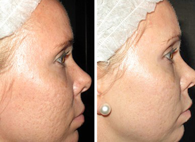 Everything Microneedling Naples