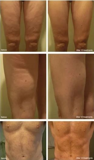 Get rid of cellulite Naples FL